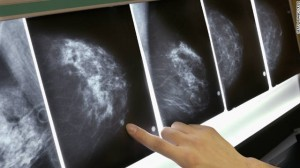 111018012923-mammogram-breast-cancer-x-ray-story-top