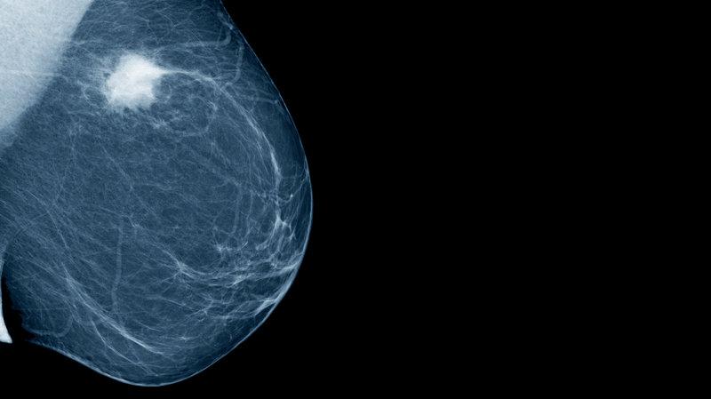 San diego breast mamogram